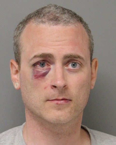 Road rage leads to black eye, felony charges for NY man