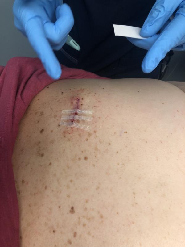 Local Skin Cancer Patient Urges Precautions Cape Gazette